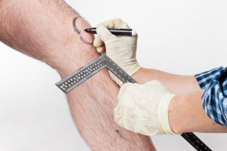 Нахождение оси ноги с помощью линейки и лазера