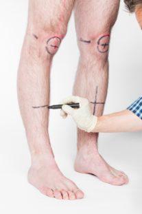 Нахождение контрольных точек на коленях клиента