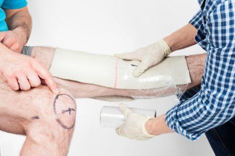 Снятие гипсового слепка ноги человека