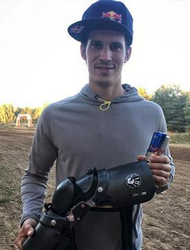 Давид Леонов с брейсами для эндуро в руках